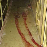 Chechnya: Torture in ORB-2