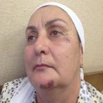 Çeçen Anneleri Organizasyonu Başkanı Moskova'da Saldırıya Uğradı