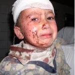 Irak' taki Çeçenler de Şiddet Ortamından Etkilendi